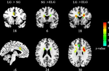 l'amor modifica el cervell